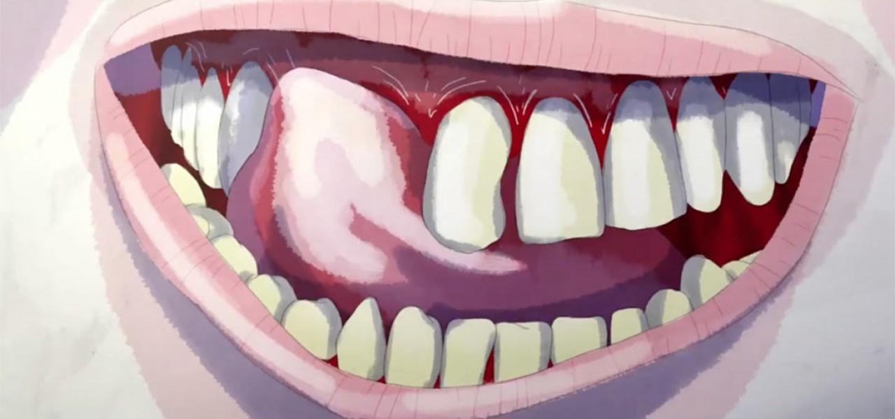 teeth - Daniel Gray & Tom Brown